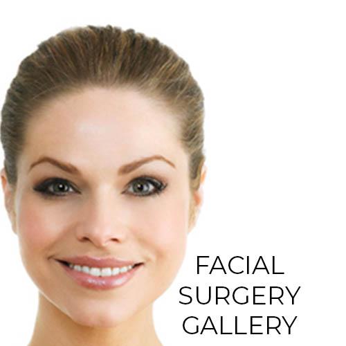 Facial rejuvenation surgery results